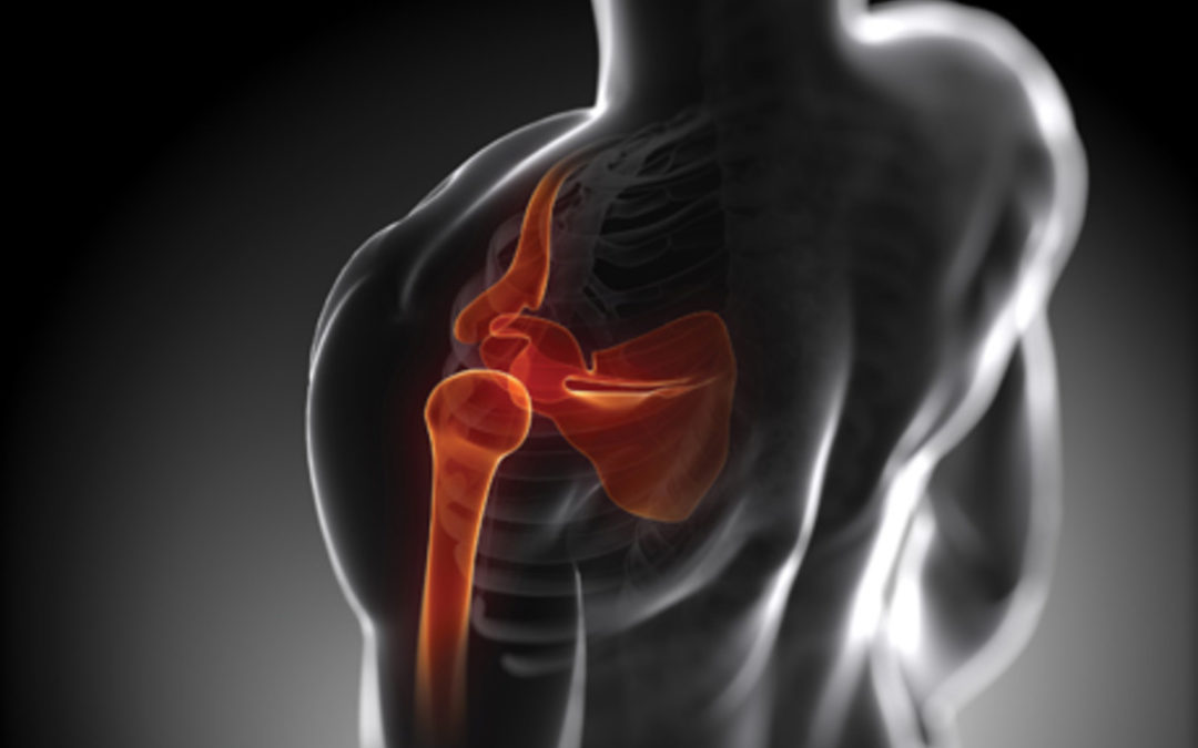 Shoulder Pain, And How To Prevent The Three Most Common Causes.