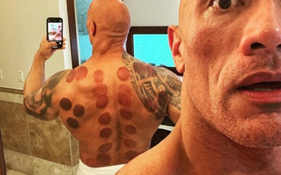 Dry Cupping – And How Can It Help You